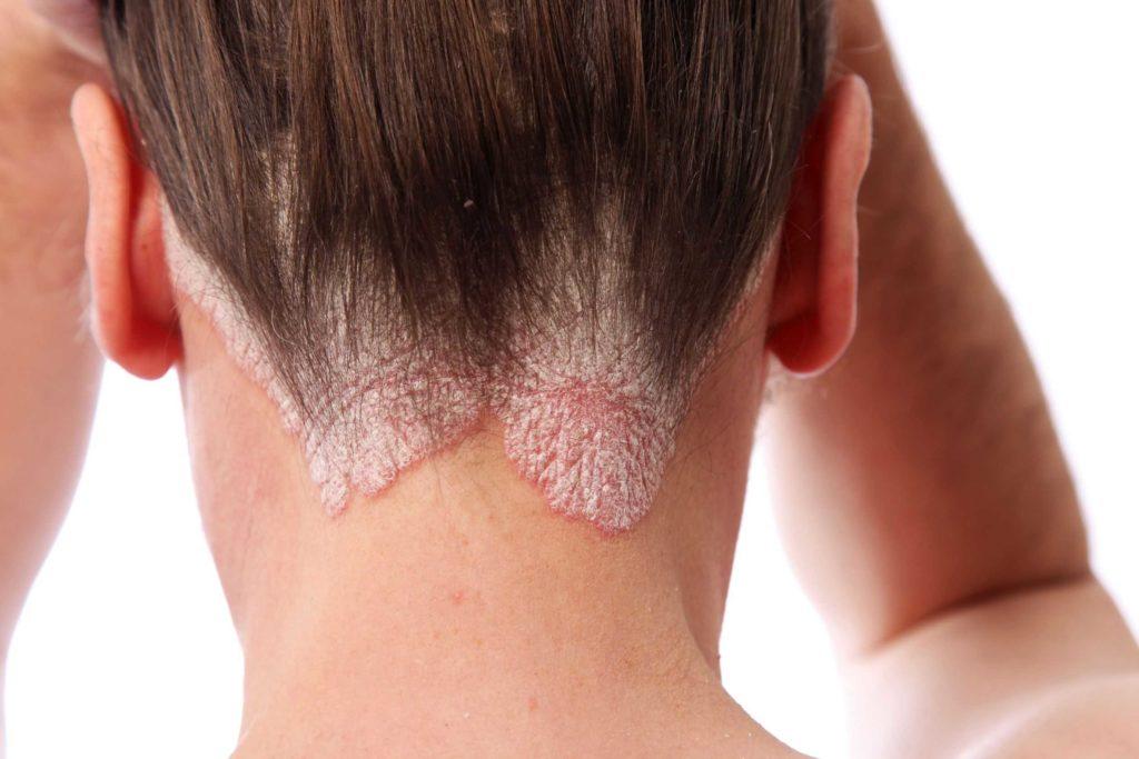 причины псориаза на голове